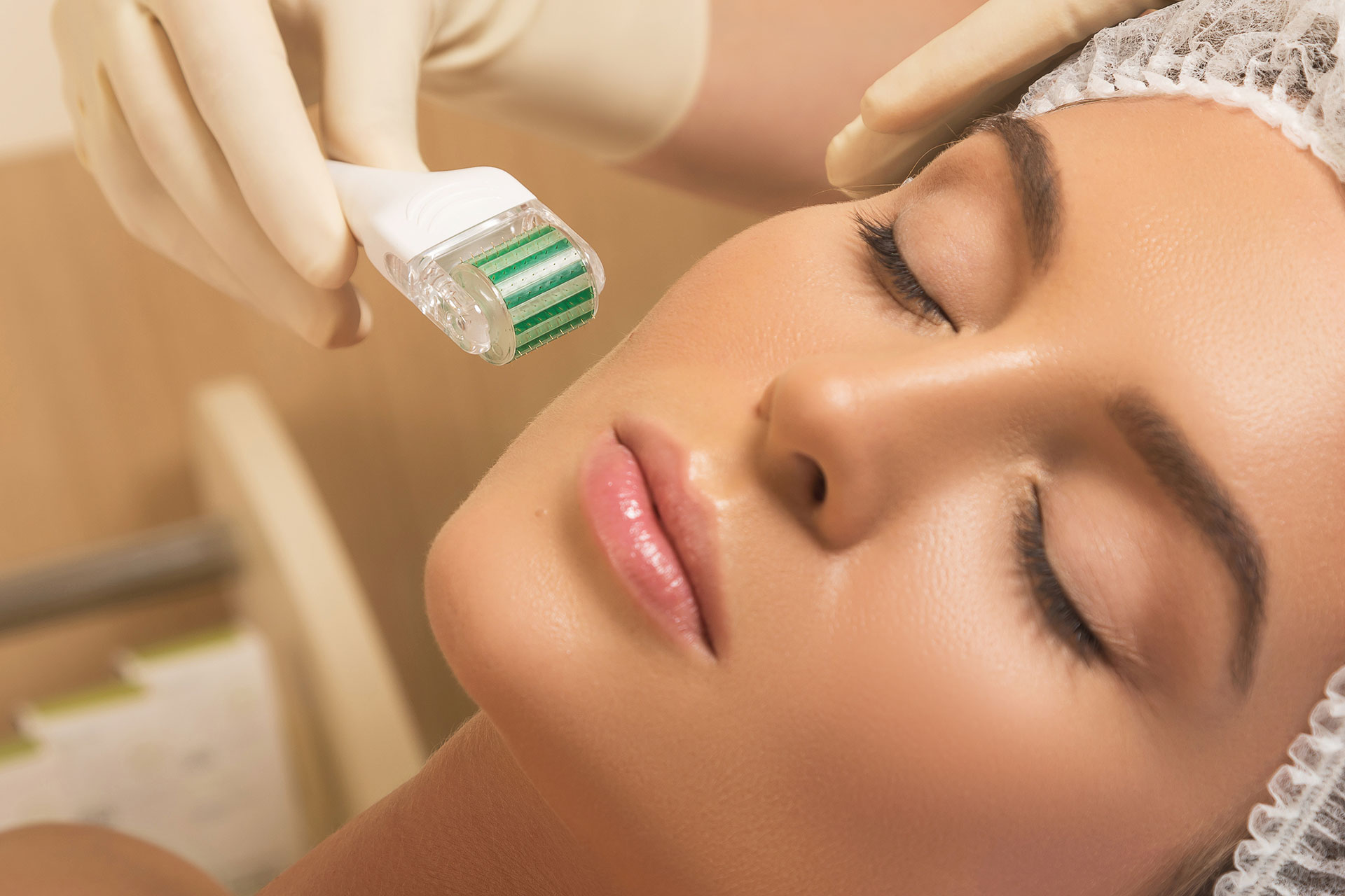 3 Interesting Facts About Microneedling Treatments